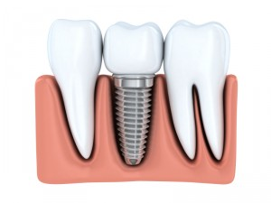 Learn more about the benefits of dental implants in Lynchburg and how to care for them.