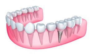 Get a new tooth with dental implants in Lynchburg