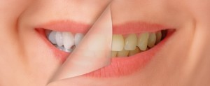 If commercials have convinced you that at-home whitening treatments are as great as working with your professional cosmetic dentist in Lynchburg, you may be off-track.