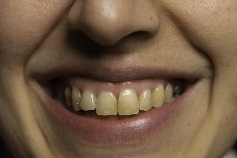 Person smiling with stained teeth